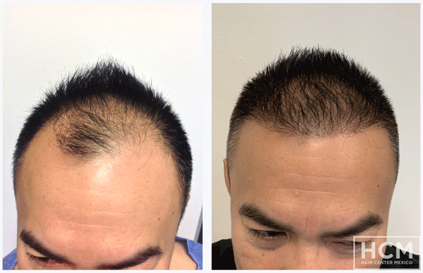 hair-loss-after-hair-transplant